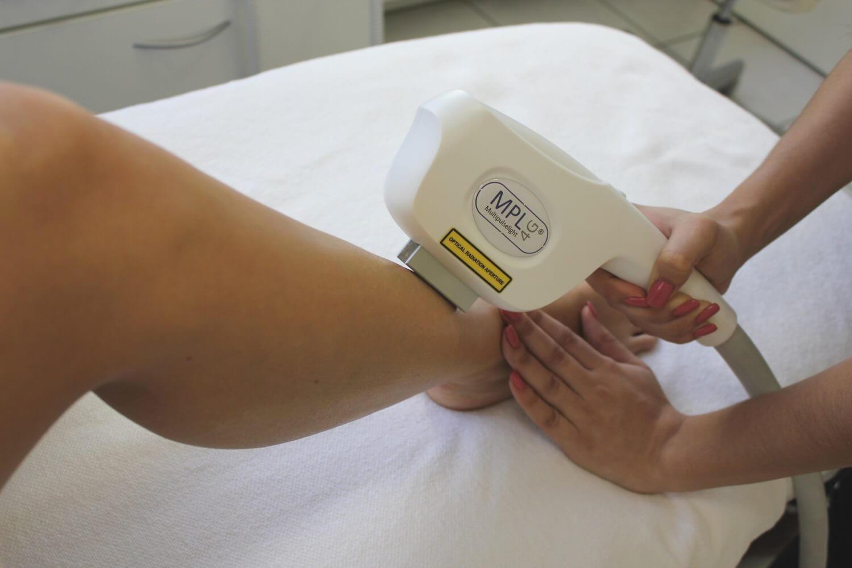 Behandlung für die dauerhafte Haarentfernung an den Beinen