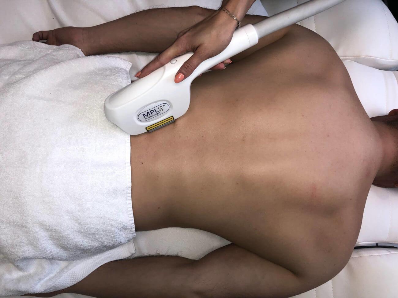 Behandlung für die dauerhafte Haarentfernung am Rücken