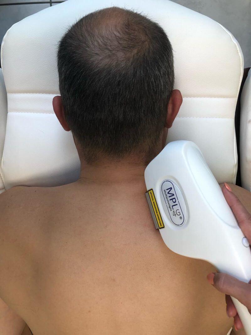 Behandlung für die dauerhafte Haarentfernung im Nacken und der Schulter